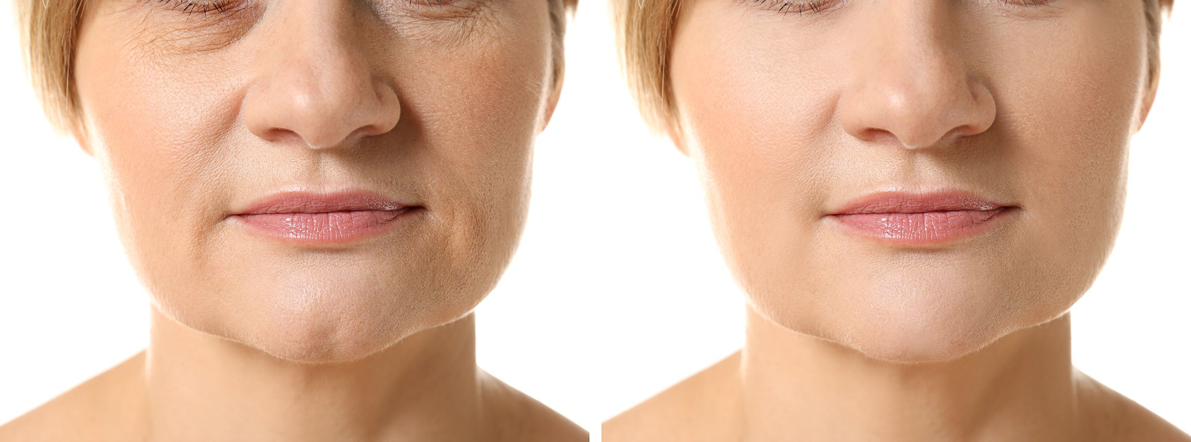Mesotherapy vs. Microneedling