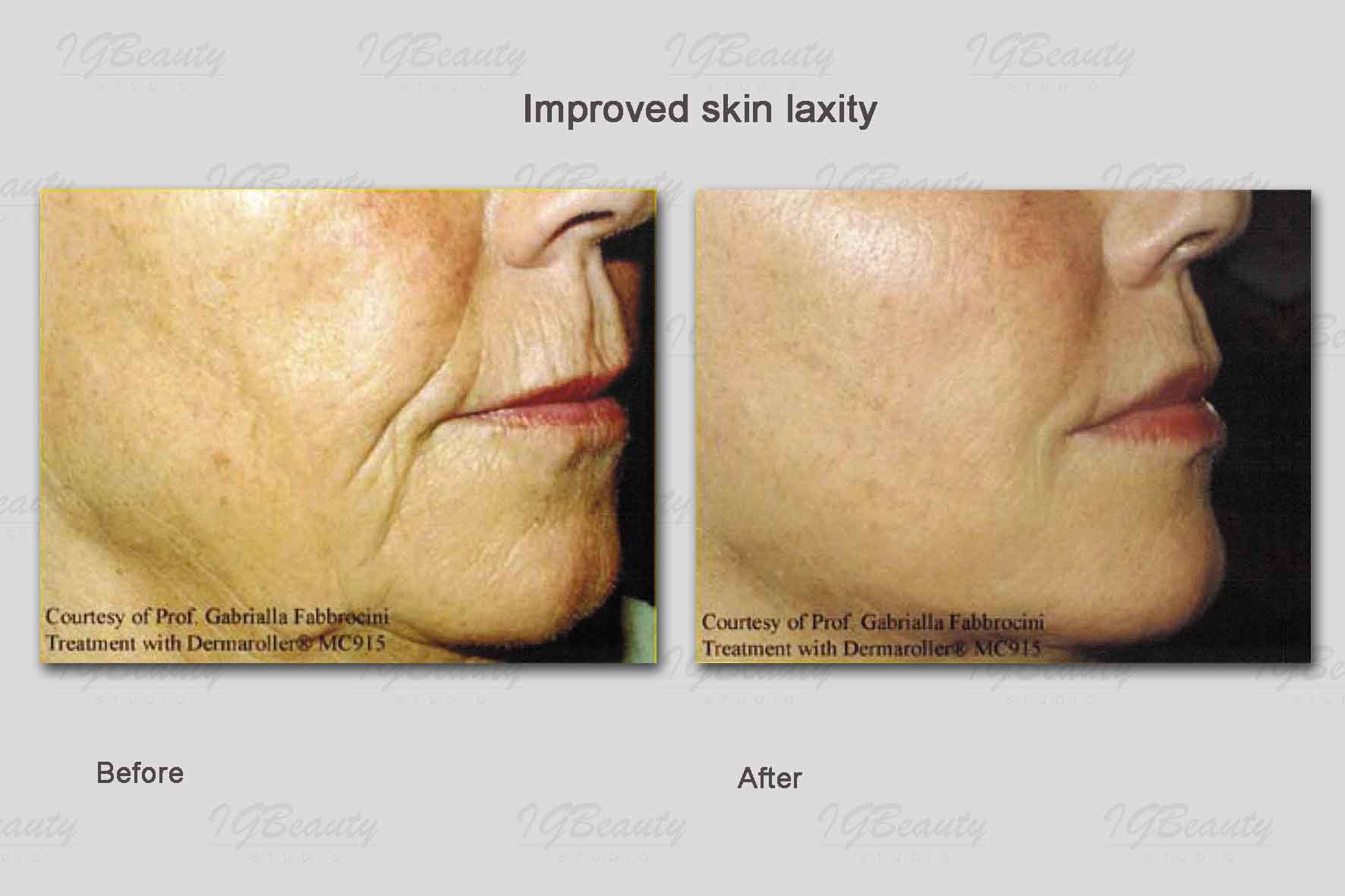 Collagen Induction Therapy Igbeauty Skin Care Clinic