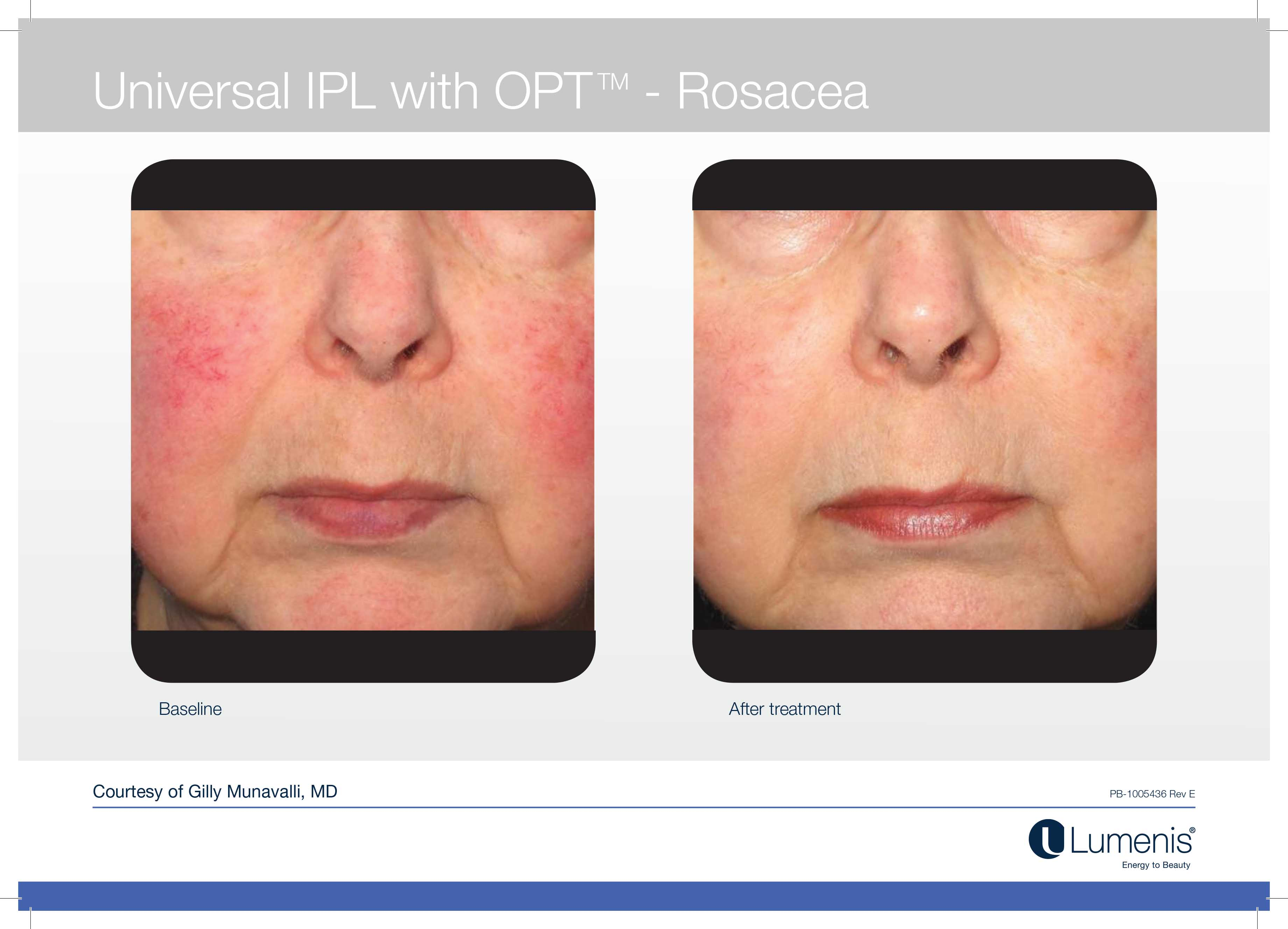 Rosacea Treatments With Ipl Igbeauty Skin Clinic Toronto