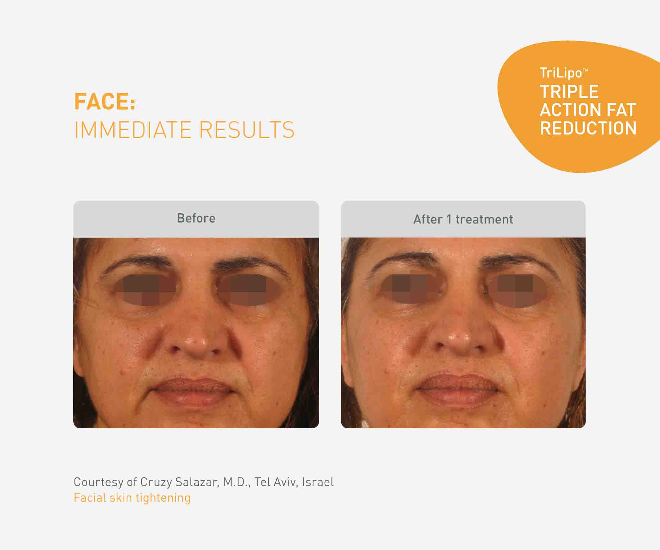 Non Surgical Facelift Toronto Igbeauty Laser Clinic