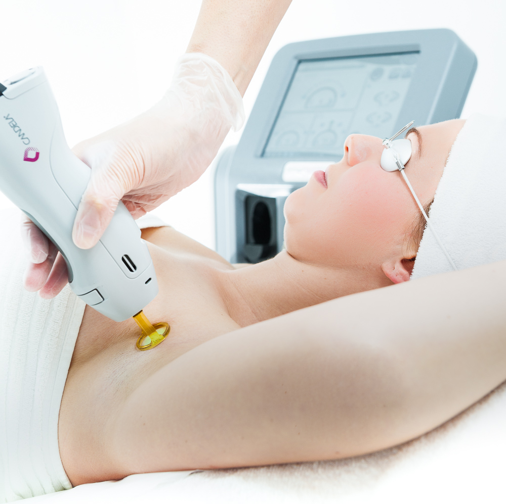 Laser Hair Removal in Toronto | IGBeauty