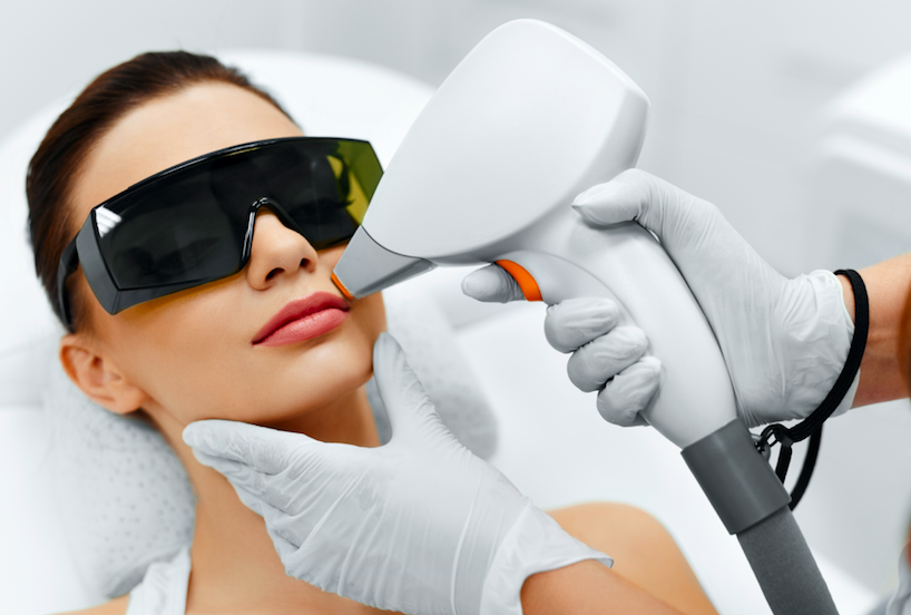 laser hair removal for facial hair