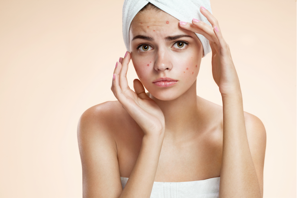 Laser treatments for acne scars from IGBeauty Studio | Toronto