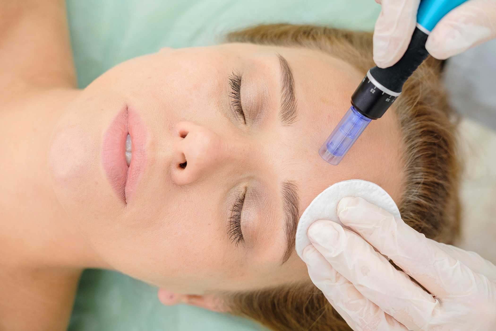 microneedling treatment by igbeauty in toronto