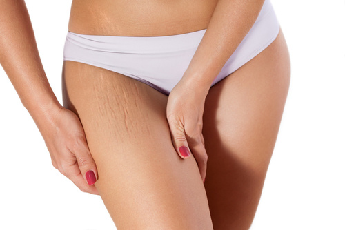 woman, leg, stretch marks, IGBeauty, Toronto, Ontario, stretch mark treatment options